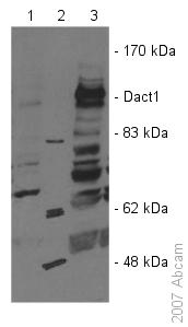 Western blot - Dact1 / Dapper homolog 1 antibody (ab51260)
