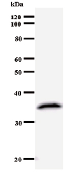 Western blot - SIAH Interacting Protein antibody [2103C3a] (ab51288)