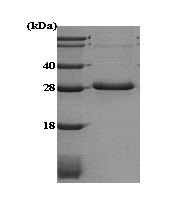 SDS-PAGE - Adiponectin protein (ab51294)