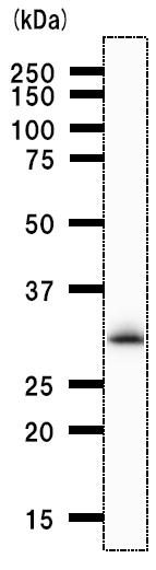 Western blot - RPA32/RPA2 antibody [2927C5] (ab51499)