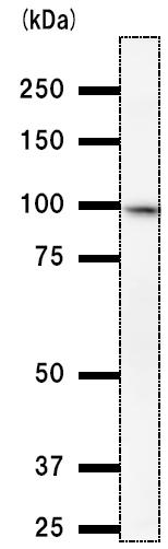 Western blot - SCML2 antibody [SCMAD14A] (ab51506)