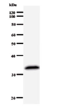 Western blot - HOXA11 antibody [739C1a] (ab51538)
