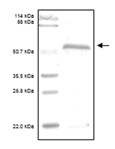 SDS-PAGE - CD62E protein (His tag) (ab52148)