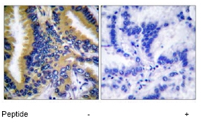 Immunohistochemistry (Paraffin-embedded sections) - Bik antibody (ab52182)