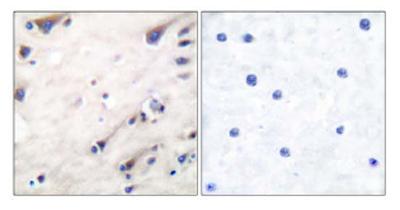 Immunohistochemistry (Paraffin-embedded sections) - KSR antibody (ab52196)