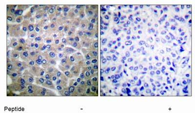 Immunohistochemistry (Paraffin-embedded sections) - BCAR1 antibody (ab52198)