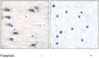 Immunohistochemistry (Paraffin-embedded sections) - KSR (phospho S392) antibody (ab52205)