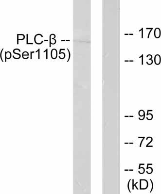 Western blot - Phospholipase C beta 3 (phospho S1105) antibody (ab52206)