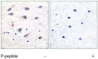 Immunohistochemistry (Paraffin-embedded sections) - Phospholipase C beta 3 (phospho S1105) antibody (ab52206)