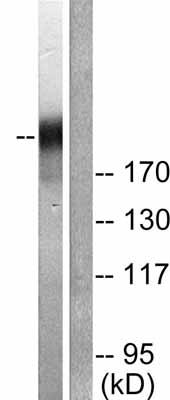Western blot - RNA polymerase II (phospho S1619) antibody (ab52208)