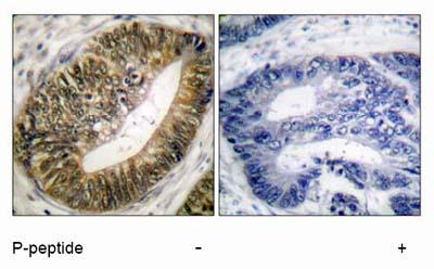 Immunohistochemistry (Paraffin-embedded sections) - Separase (phospho S801) antibody (ab52210)