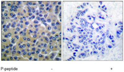 Immunohistochemistry (Paraffin-embedded sections) - Syk (phospho Y348) antibody (ab52212)