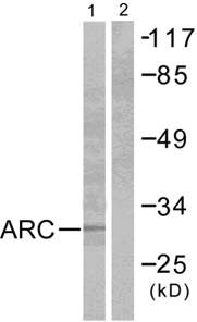 Western blot - Apoptosis repressor with CARD antibody (ab52224)