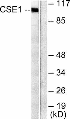 Western blot - Cellular Apoptosis Susceptibility antibody (ab52232)