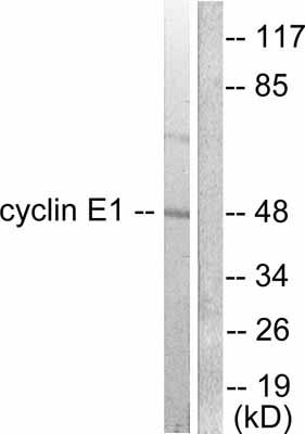 Western blot - Anti-Cyclin E1 antibody (ab52239)