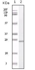 Western blot - S100 alpha antibody [5GH2A] (ab52271)