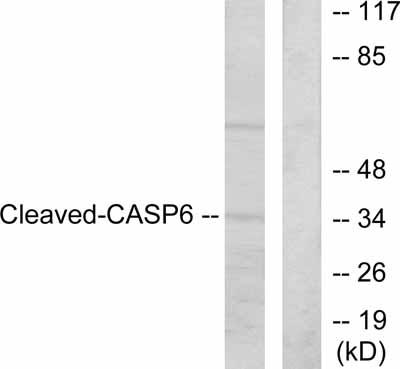Western blot - Anti-Caspase-6 antibody (ab52296)
