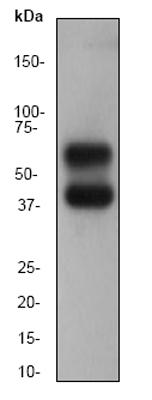 Western blot - Anti-CaMKII antibody [EP1829Y] (ab52476)