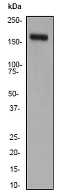 Western blot - CD11b antibody [EP1345Y] (ab52478)
