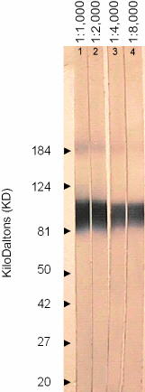 Western blot - VZV gE protein antibody [9C8] (ab52549)