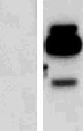 Western blot - Interferon gamma antibody (ab52671)