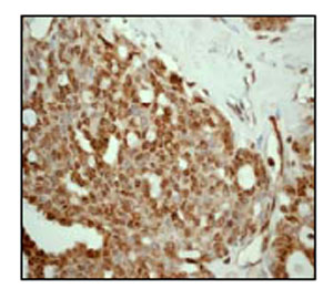 Immunohistochemistry (Formalin/PFA-fixed paraffin-embedded sections) - Anti-HSF1 antibody [EP1710Y] (ab52757)