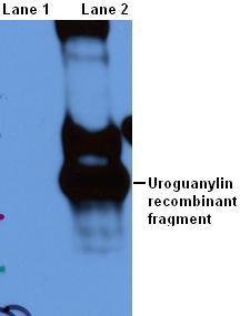 Western blot - Uroguanylin antibody (ab52806)