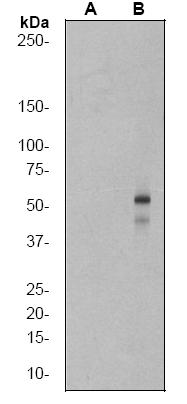 Western blot - Smad3 antibody [EP823Y] (ab52903)