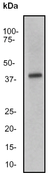 Western blot - Anti-IL18 binding protein antibody [EP1088Y] (ab52914)