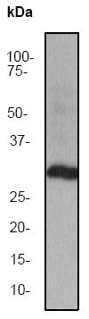 Western blot - Anti-NGF antibody [EP1320Y] (ab52918)