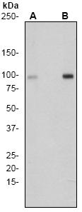 Western blot - ATP citrate lyase antibody [EP737Y] (ab53007)