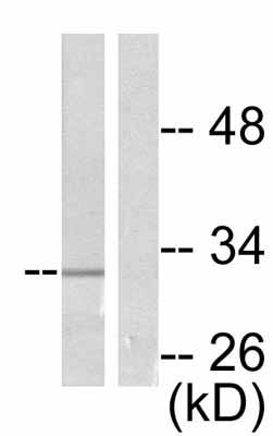 Western blot - RPS6 (phospho S240 + S244) antibody (ab53024)