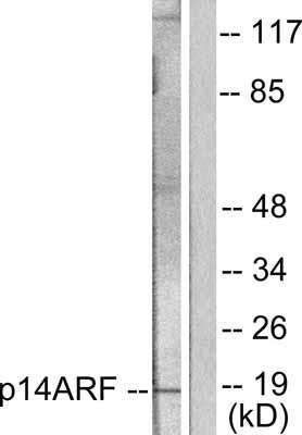Western blot - p14ARF antibody (ab53031)