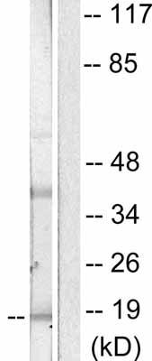 Western blot - p18 INK4c antibody (ab53035)