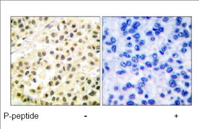 Immunohistochemistry (Paraffin-embedded sections) - CREB (phospho S129 + S133) antibody (ab53037)