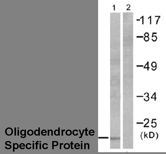 Western blot - Oligodendrocyte Specific Protein OSP antibody (ab53041)