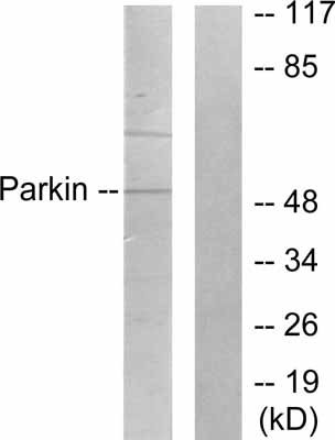 Western blot - Parkin antibody (ab53042)