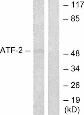 Western blot - ATF2 antibody (ab53053)