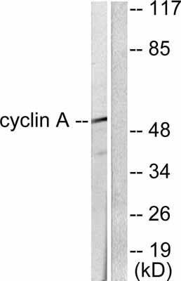 Western blot - Anti-Cyclin A1 antibody (ab53054)