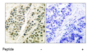 Immunohistochemistry (Paraffin-embedded sections) - DNA Polymerase beta antibody (ab53059)