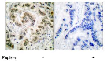 Immunohistochemistry (Paraffin-embedded sections) - E2F4 antibody (ab53060)