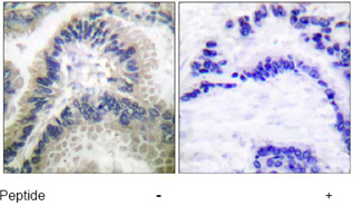 Immunohistochemistry (Paraffin-embedded sections) - Guanylate Cyclase antibody (ab53084)