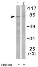 Western blot - Guanylate Cyclase antibody (ab53084)