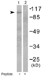 Western blot - GluR2 + 3 antibody (ab53086)