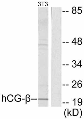 Western blot - hCG beta antibody (ab53087)