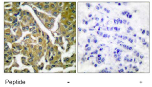 Immunohistochemistry (Paraffin-embedded sections) - beta Catenin antibody (ab53089)
