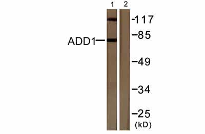 Western blot - alpha Adducin (phospho S726) antibody (ab53093)