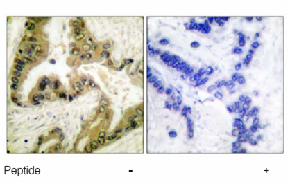 Immunohistochemistry (Paraffin-embedded sections) - HDAC10 antibody (ab53096)