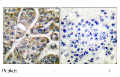 Immunohistochemistry (Paraffin-embedded sections) - Granzyme B antibody (ab53097)