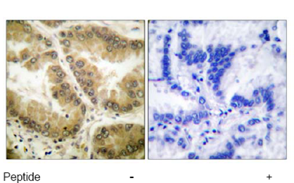 Immunohistochemistry (Paraffin-embedded sections) - HDAC7 antibody (ab53101)